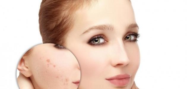 وصفة لإزالة آثار حب الشباب من الوجه