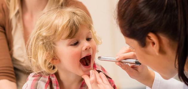 علاج التهاب الحلق %D8%B9%D9%84%D8%A7%D
