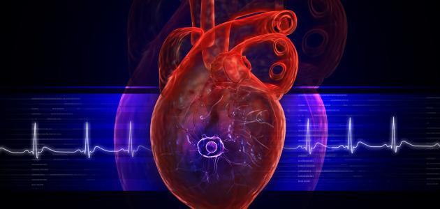 ما هو تضخم عضلة القلب
