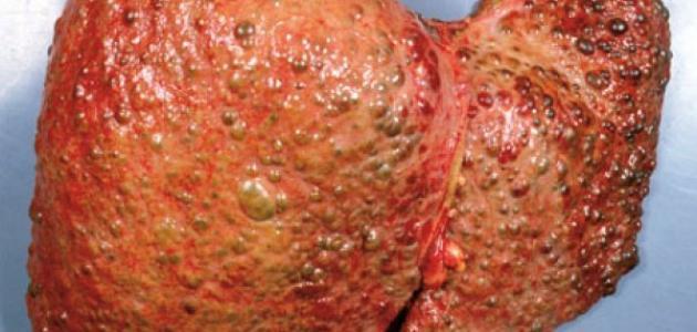 نتيجة بحث الصور عن تشمع الكبد