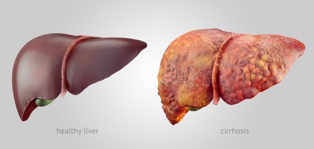 ما هو تشمع الكبد