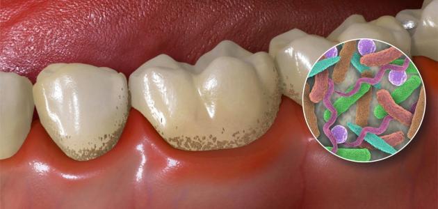 وصفة لعلاج تسوس الأسنان