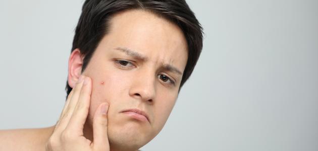 تأثير نقص فيتامين د على البشرة