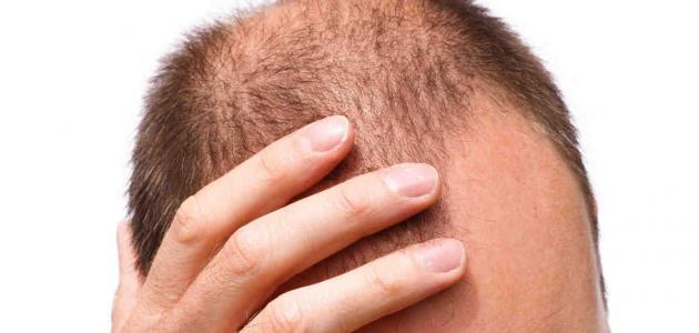 هل زراعة الشعر لها أضرار