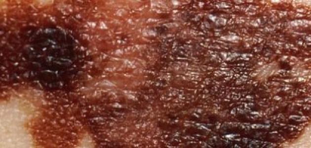 ما هو سرطان الجلد