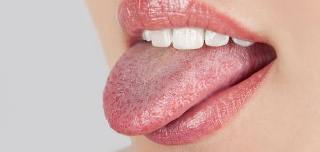 أسباب فطريات اللسان وعلاجها