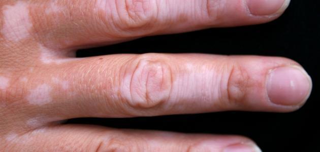 نقص الصبغة في الجلد