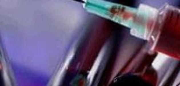 تحليل فقر الدم هل يحتاج إلى صيام