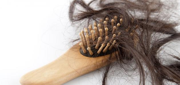 تساقط الشعر الدهني