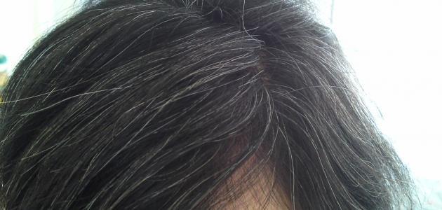 طرق علاج الشعر الأبيض