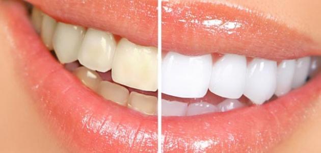 كيفية تبييض الأسنان