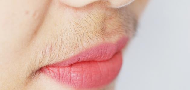 سبب ظهور الشعر في الذقن لدى النساء