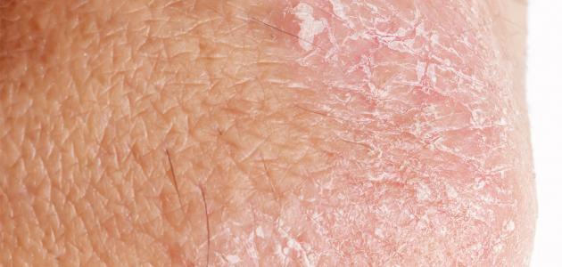 طرق لإزالة آثار الإكزيما