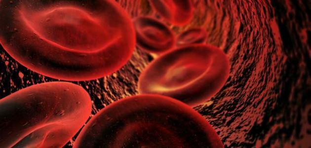 نقص صوديوم الدم