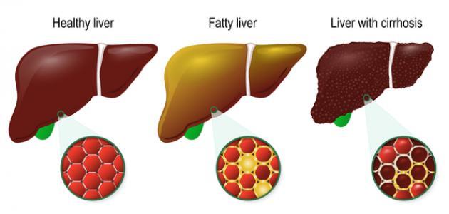 ما هو علاج تليف الكبد