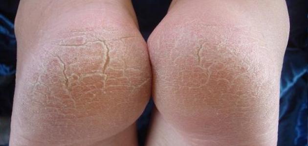 ما هو علاج تشقق القدمين