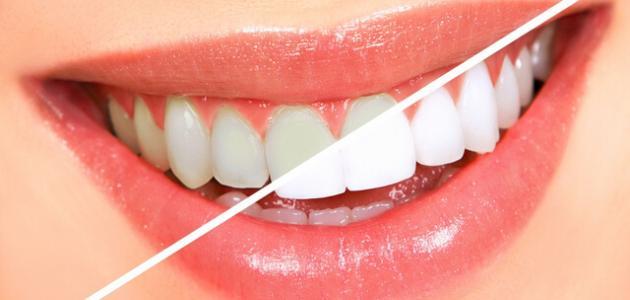 فوائد وأضرار تبييض الأسنان