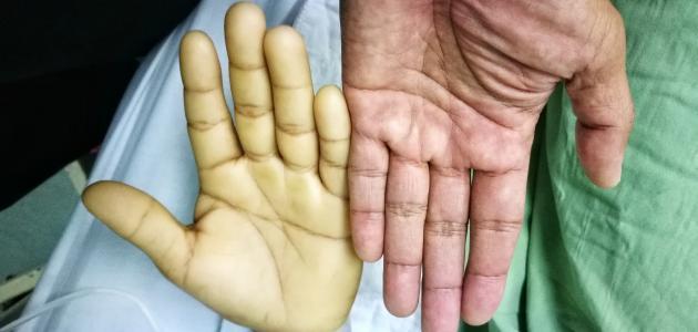 علامات فقر الدم الحاد