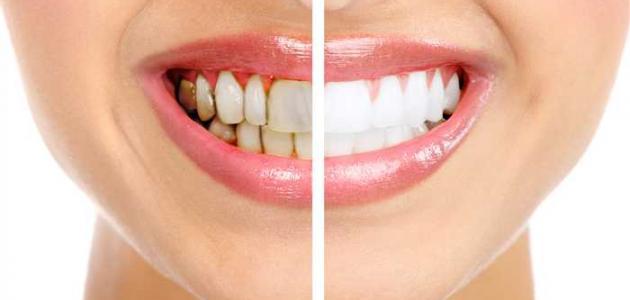 كيفية الاعتناء بالأسنان