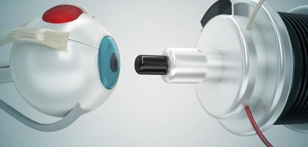 فوائد وأضرار عملية الليزر للعيون