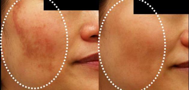 إزالة آثار الشمس من الوجه