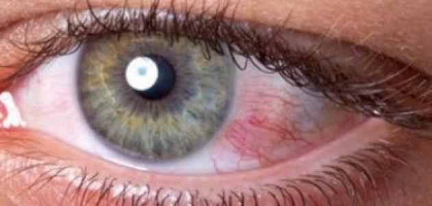 كيفية قياس ضغط العين