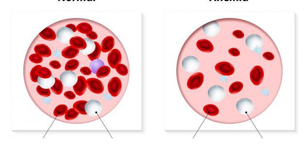 ما هي أسباب فقر الدم