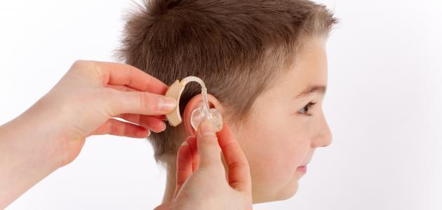 ضعف السمع عند الأطفال وعلاجه