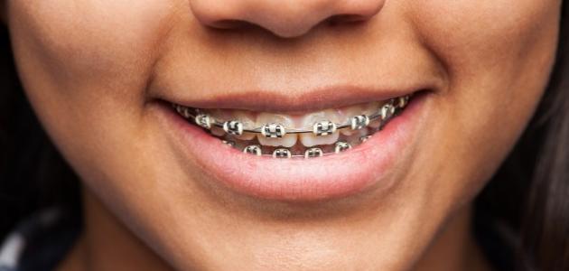 ما فائدة تقويم الأسنان