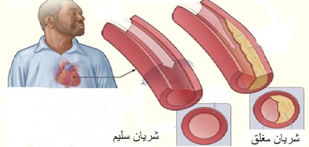 ما هي أمراض القلب