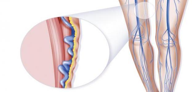 علاج طبيعي لدوالي الساقين