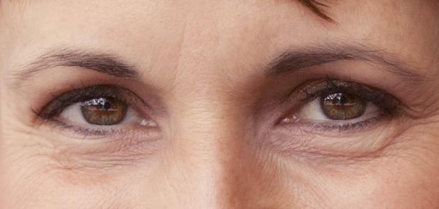 علاج سريع للتجاعيد حول العين