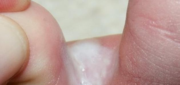علاج الفطريات بين أصابع القدمين