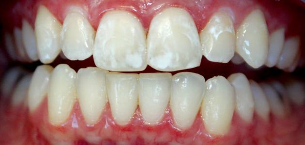 البقع البيضاء في الأسنان