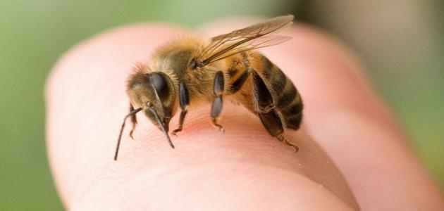 علاج حساسية لسع النحل