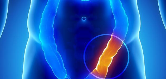 علامات الإصابة بسرطان القولون