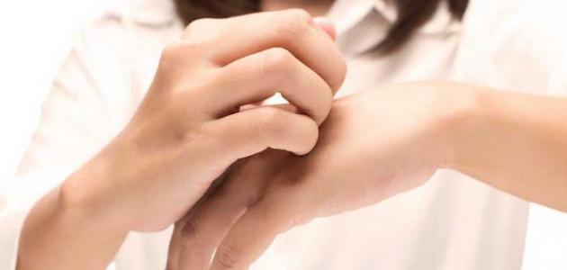 علاج جفاف جلد اليد