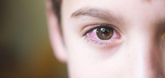 انسداد القناة الدمعية عند الأطفال