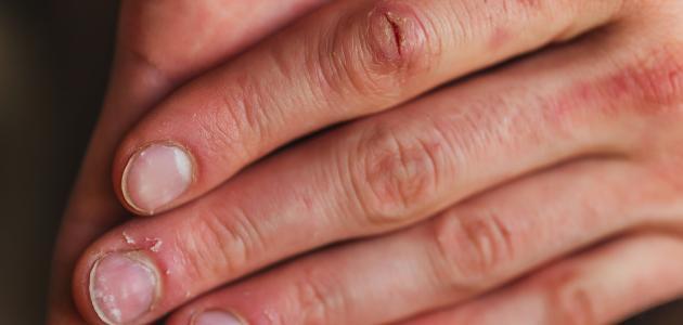 نقص الفيتامينات والجلد