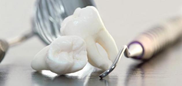 علاج ضعف مينا الأسنان