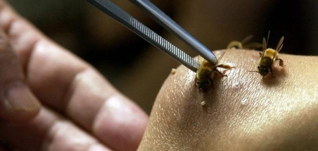 فوائد حقن سم النحل