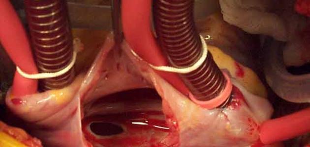 علاج ثقب القلب بين البطينين