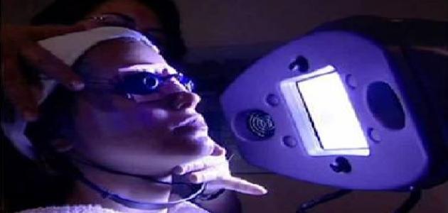 العلاج الضوئي