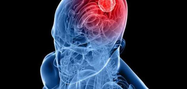 ما هو ورم المخ