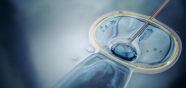 عملية الحقن المجهري