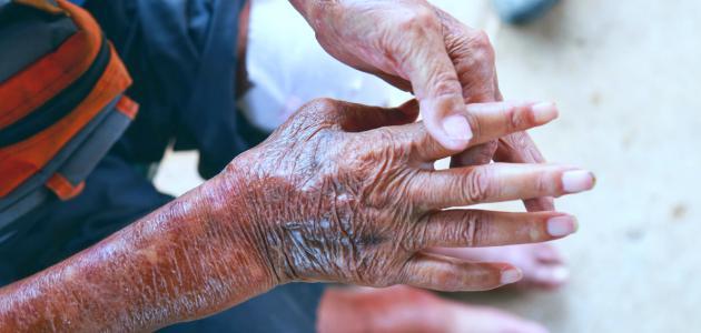 ما هو تليف الجلد