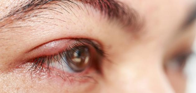 للتخلص من التهاب العين