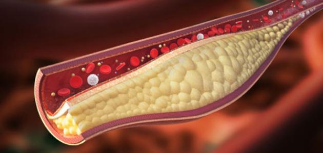 علامات ارتفاع الكولسترول في الدم