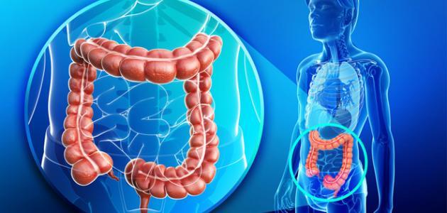 علاج التهاب القولون