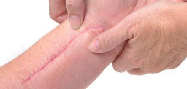 علاج آثار الجروح القديمة